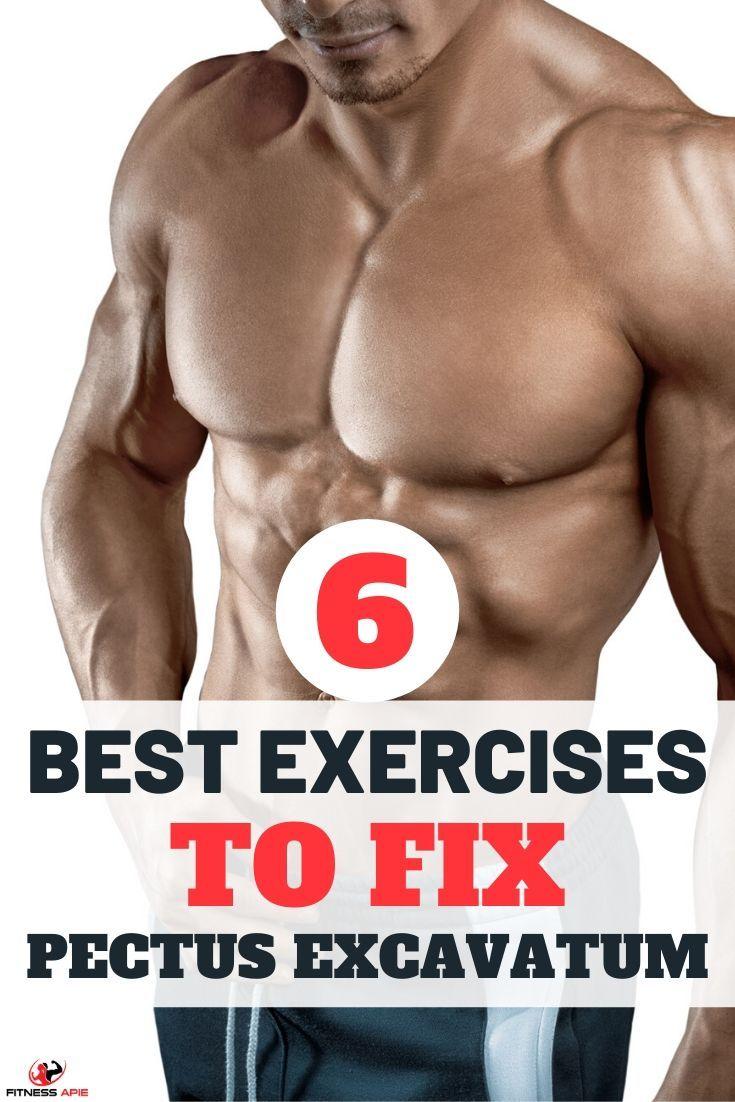 6 best exercises for pectus excavatum